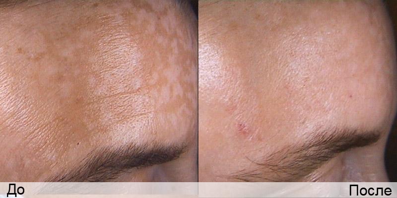 Крем который отбеливает кожу