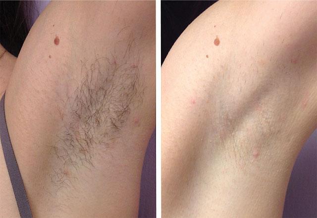 эпиляция до и после фото