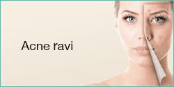 Akne Ravi
